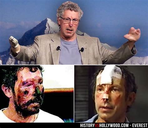 Beck Weathers' severe frostbite is visible (bottom left